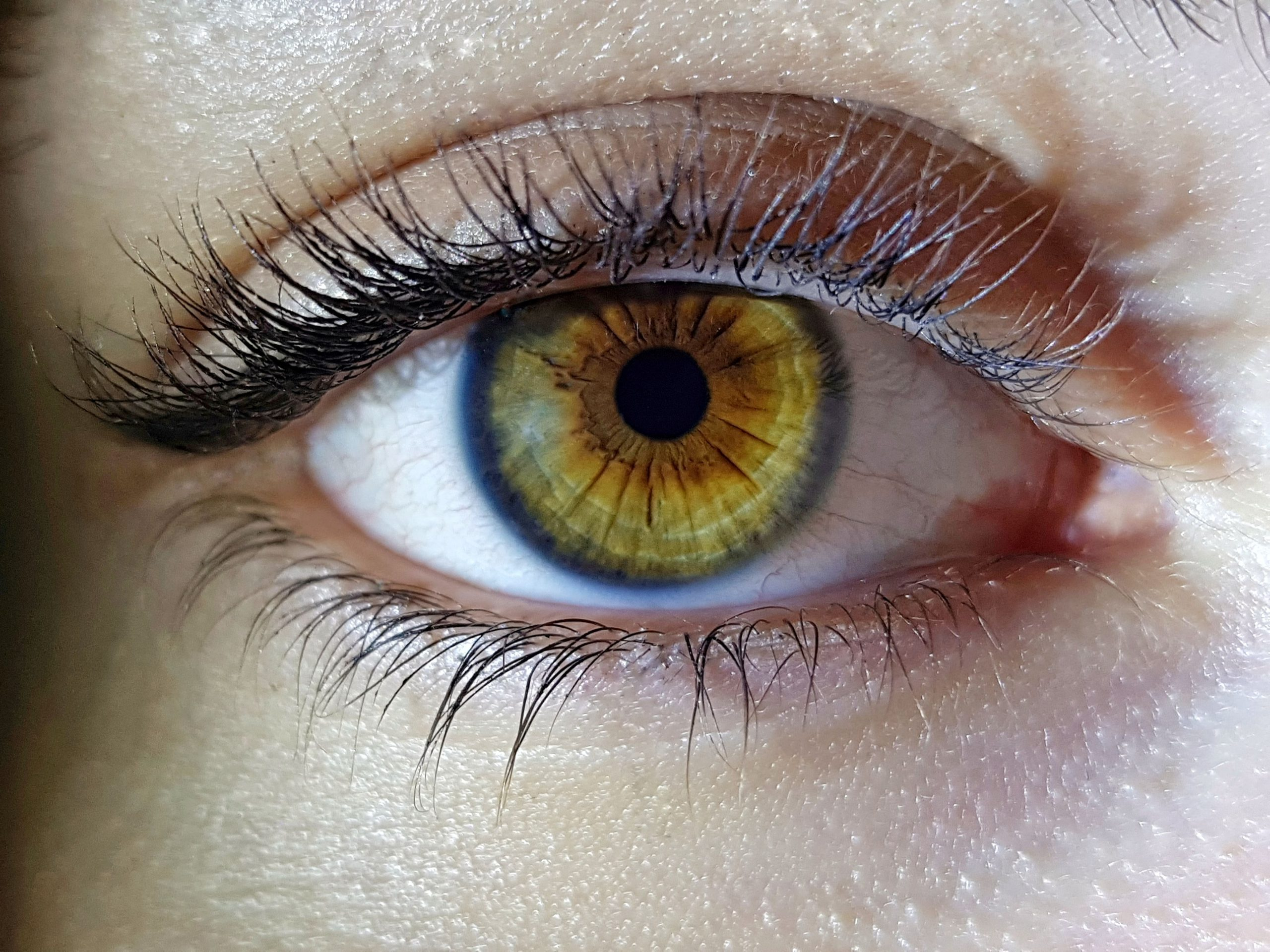 Diabetic retinopathy can cause blindness